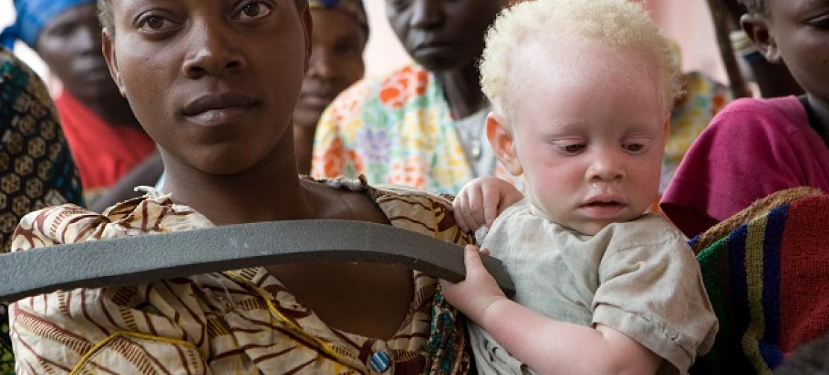 Caregiver attends to abandoned albino toddler in Goma, DRC.