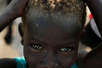 Nyatap is a 6-year old displaced South Sudanese refugee child. OCHA/Jacob Zocherman