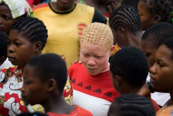 Albinism is a common genetic disorder in Equateur. Monieka, Democratic Republic of the Congo.