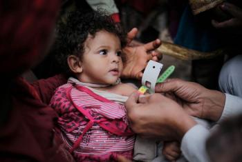 A child suffering from acute malnutrition being screened by a doctor, in Bani Al-Harith, Sana'a, Yemen.