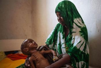 A two year-old child cries for his mother at the Kismayo general hospital in Somalia. Born with a deformity, the child is also suffering from extreme malnourishment.