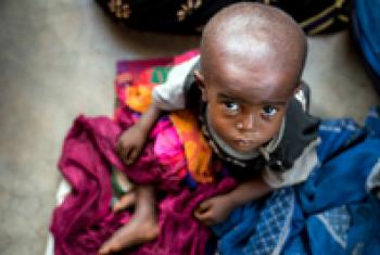 Child with malnutrition awaits treatment.