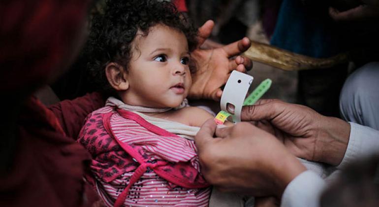 Un niño con desnutrición aguda es examinado por personal de salud en Bani Al-Haith, en Sana'a, Yemen. Foto: UNICEF
