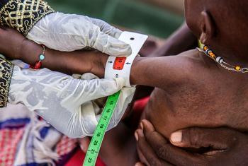 Un niño con desnutrición es tratado en un centro de UNICEF en Nigeria. Foto: ©UNICEF/UN028417/Esiebo