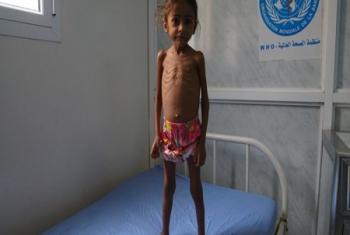 La situation est catastrophique et ne cesse d'empirer au Yémen où 400.000 enfants sont exposés à la malnutrition aiguë sévère (photo : twitter UNICEF).