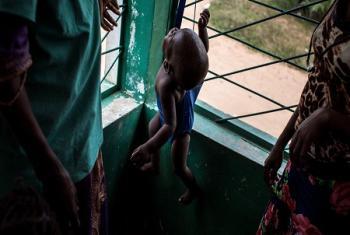 En RDC, 400.000 enfants sévèrement malnutris risquent de mourir au Kasaï, une région qui subit des violences depuis septembre 2016
