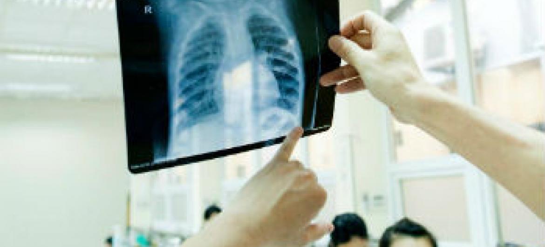 Doenças respiratórias. Foto: OMS/TV. Hung