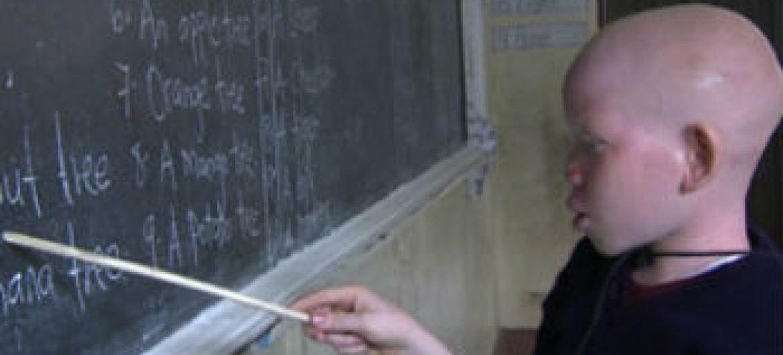 Cerca de 75 albinos mortos desde o ano 2000. Foto: Ohchr