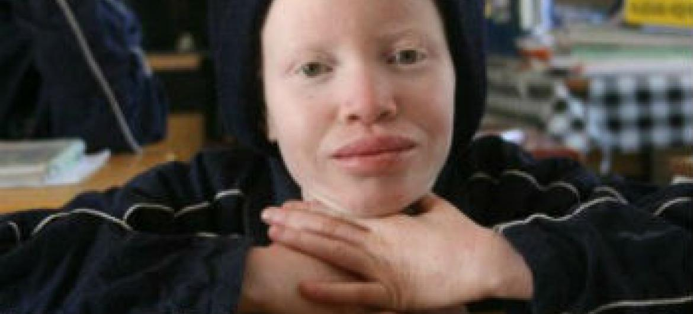 Criança albina. Foto: Unicef Namibia/2012/Manuel Moreno
