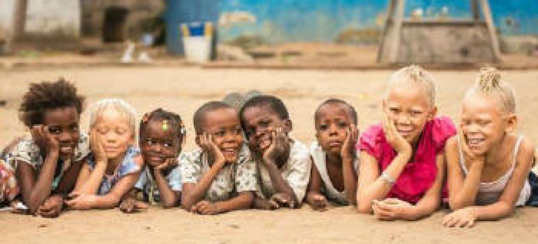 Desafios dos albinos incluem exclusão social. Foto: Unicef.