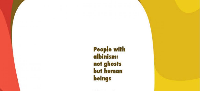 O 1º Dia Mundial de Consciencialização do Albinismo foi assinalado a 13 de junho deste ano. Imagem: Escritório do Alto Comissário das Nações Unidas para os Direitos Humanos (EACDH)