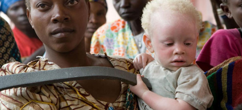 A maioria das vítimas são mulheres e crianças.Foto: ONU/Marie Frechon.