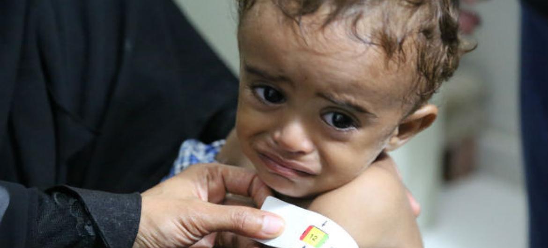 Criança no Iêmen. Foto: PMA/Abeer Etefa