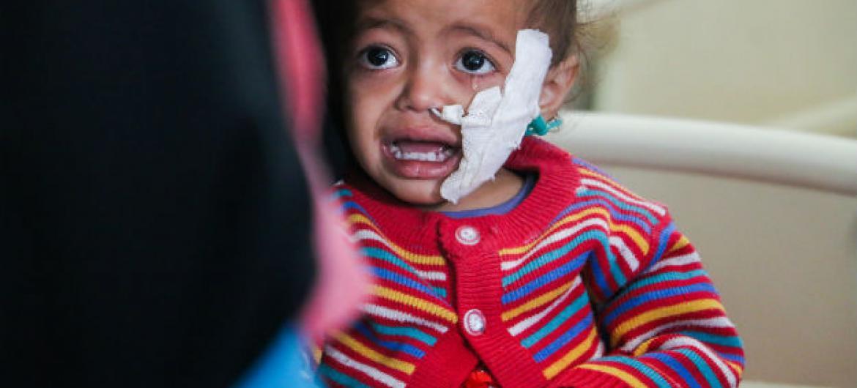 Meio milhão de crianças sofrem de desnutrição aguda grave devido à guerra no país mais pobre do Oriente Médio. Foto: Unicef
