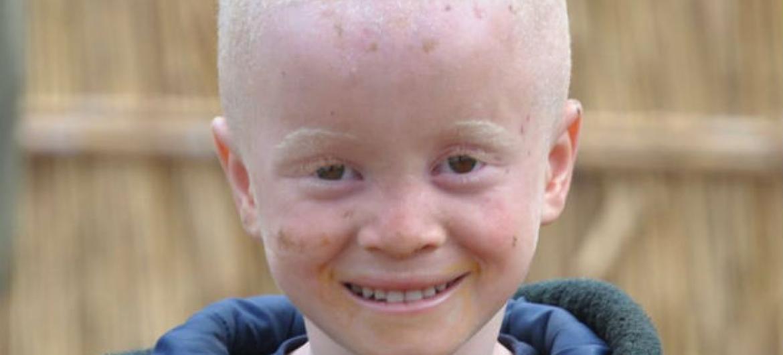 Crianças com albinismo muitas vezes sofrem abusos em África Austral. Foto: Unicef Moçambique/ Sergio Fernandez