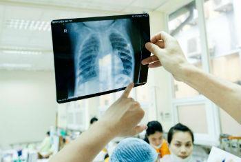 Exposição ao amianto pode causar câncer de pulmão. Foto: OMS/TV. Hung