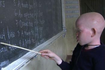 Criança albina. Foto: Escritório de Direitos Humanos da ONU