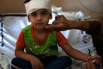 Criança ferida pela violência em Gaza. Foto: Unicef/D'Aki