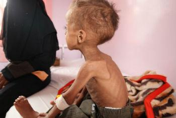 Aumento de crianças desnutridas no Iêmen. Foto: Unicef/Yasin