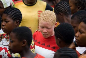 Apelo visa combater os ataques frequentes contra albinos. Foto: ONU/Marie Frechon