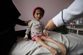 Uma criança de 2 anos desnutrida recebe tratamento em um hospital no Iêmen. Foto: Unicef/Yasin