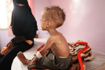 Em um hospital na capital do Iêmen, Sanaa, Faisal, um menino de 18 meses, é tratado para desnutrição grave. Sua mãe levou dois meses para levá-lo de sua aldeia até o hospital, uma viagem que duraria 4 horas de ônibus em tempos de paz. Foto: Unicef/ Yasin