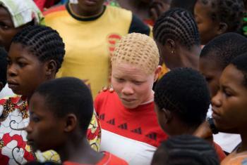 Jovem com albinismo. Foto: ONU/Marie Frechon