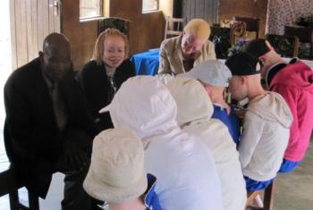 Presidente da Comissão Nacional de Direitos Humanos de Moçambiquedefendeu a punição a todos os que atacam pessoas albinas.Foto: ONU Malawi (arquivo)
