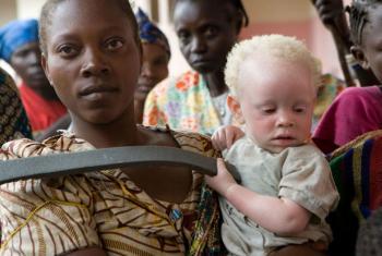 Dia Mundial de Conscientização sobre o Albinismo.Foto: ONU/Marie Frechon.