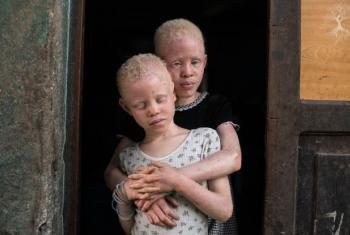 Dia Mundial de Consciencialização do Albinismo.Foto: Unicef Moçambique