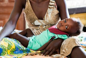 Criança com desnutrição severa em Juba, no Sudão do Sul. Foto: Unicef/UN053447/Gonzalez Farran
