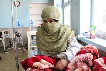 Paciente no Afeganistão. Foto: UNFPA