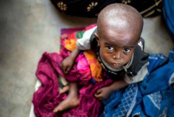 O Unicef aumentou a resposta humanitária com alimentos terapêuticos para milhares de crianças. Foto: Unicef
