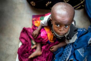 Criança desnutrida na República Democrática do Congo. Foto: ONU/ Unicef/UN064921