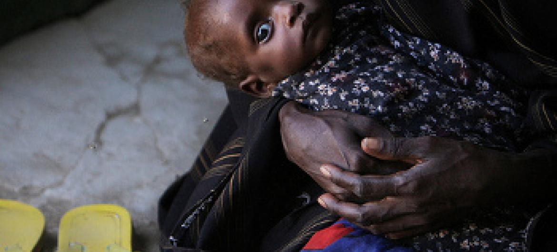 watoto 50,000 wameathirika na utapiamlo Somalia @
