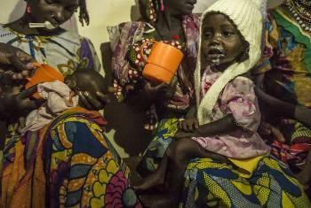 Watoto wanaougua utapiamlo wanapewa chakula maalum hospitali ya Batouri, Cameroun, @UNHCR