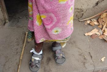 Ugonjwa wa ukoma husababisha vidole kukatika. (Picha: Kwa hisani ya NLTP-TZ)