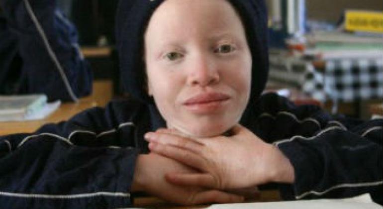 白化病儿童。联合国儿童基金会图片/Manuel Moreno。